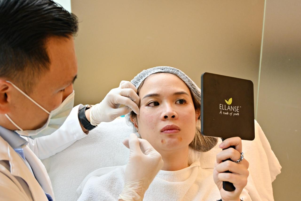 永和皮膚科推薦:林上立醫師 少女針洢蓮絲Ellanse漸進式膠原蛋白增生,不讓歲月在臉上留下痕跡